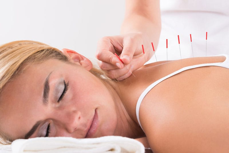 acupuncture Launaguet et Minimes