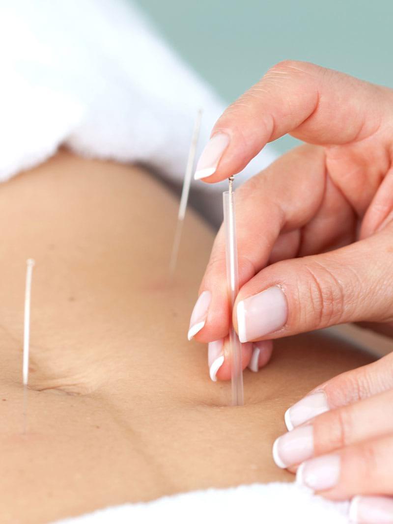acupuncture Launaguet et Minimes